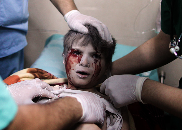 A Palestinian boy, who medics said was wounded by Israeli shelling, receives treatment at al-Shifa hospital in Gaza City July 20, 2014. At least 20 Palestinians were killed on Sunday by Israeli shelling in a Gaza neighbourhood, where bodies were strewn in the street and thousands fled toward the hospital packed with wounded, witnesses and health officials said. The mass casualties in the Shejaia district in northeast Gaza appeared to be the heaviest since Israel launched its offensive on the Palestinian territory on July 8 after cross-border rocket strikes by militants intensified. Militants kept up their rocket fire on Israel, with no sign of a diplomatic breakthrough toward a ceasefire in sight. Photo by Ali Jadallah