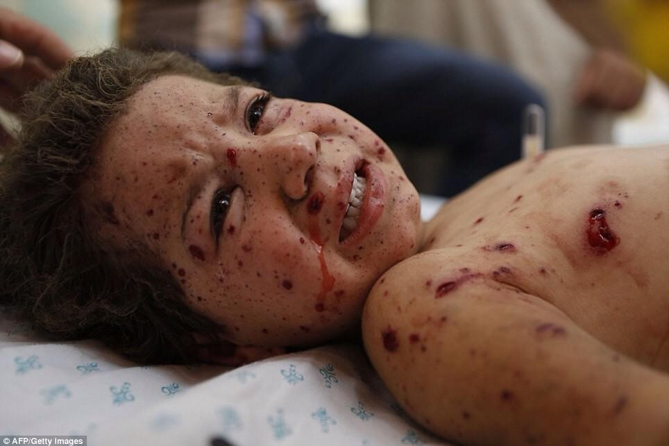 A child being treated after an Israeli attack on Gaza. Credit: AFP/Getty