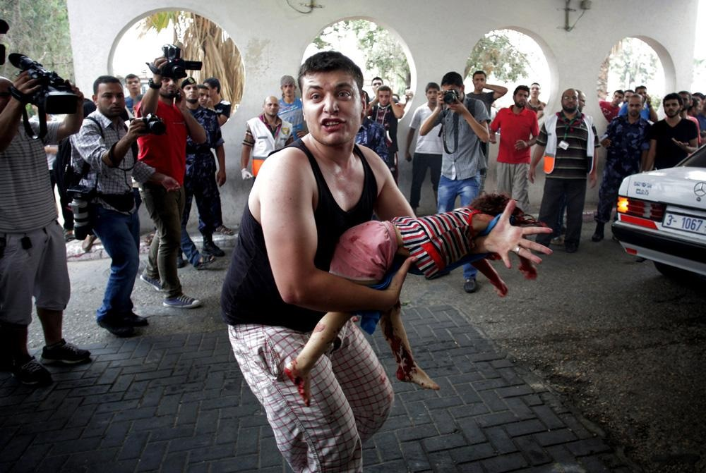 A Palestinian man carries the lifeless body of a child to an emergency room at Shifa hospital in Gaza. (AP)