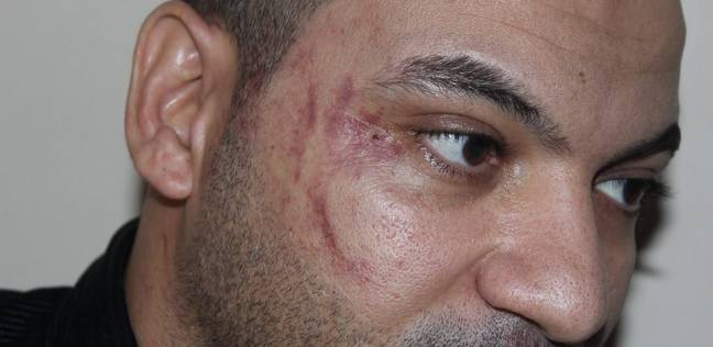Bruises on El-Sayed's face as a result of the beating he received at the restaurant.