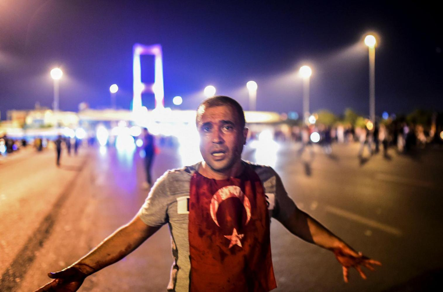 A man covered with blood stands near Bosphorus bridge during the coup attempt in Istanbul. (Credit: AFP/Bulent Kilic)