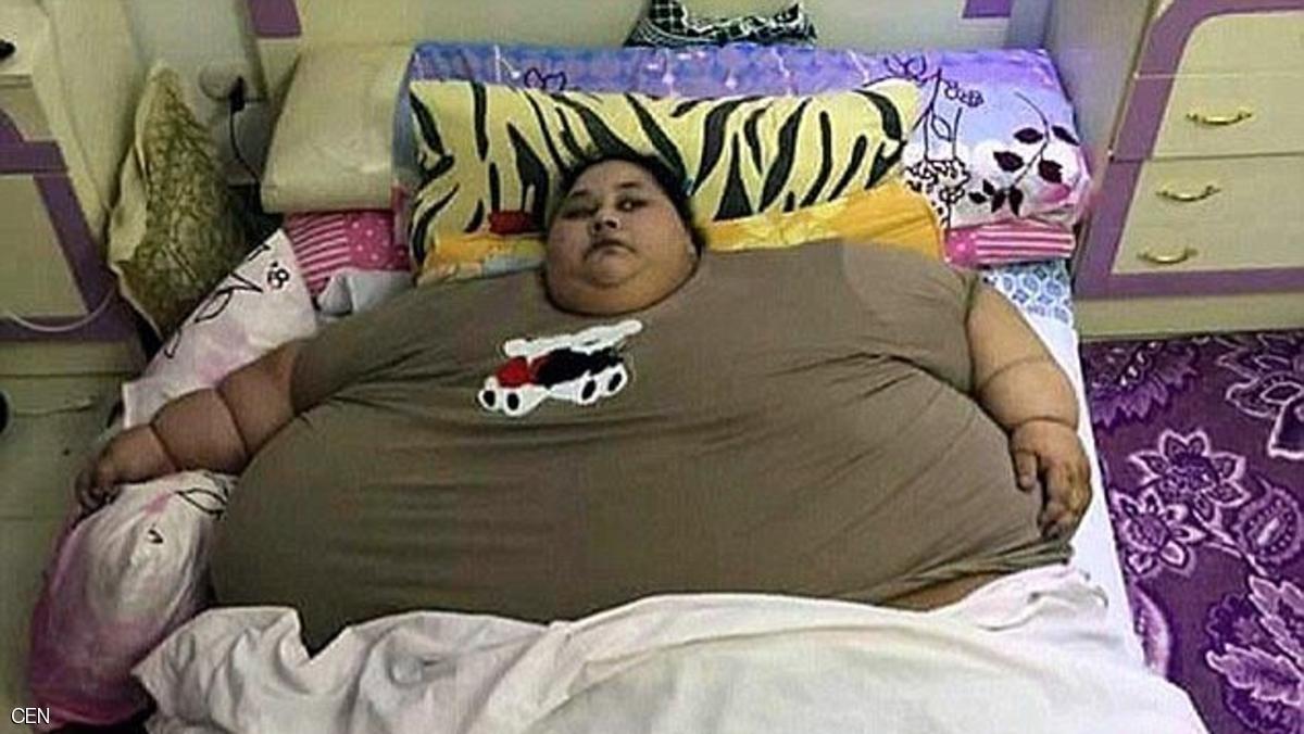 Femeia de kg, considerată cea mai grea din lume, a ajuns la kg şi va fi mutată în Emirate